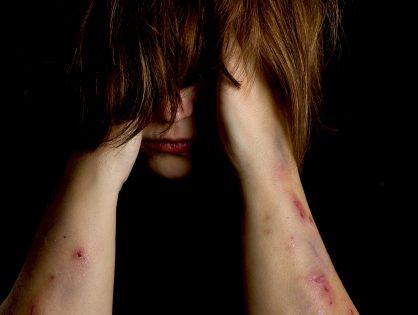Auto-mutilação
